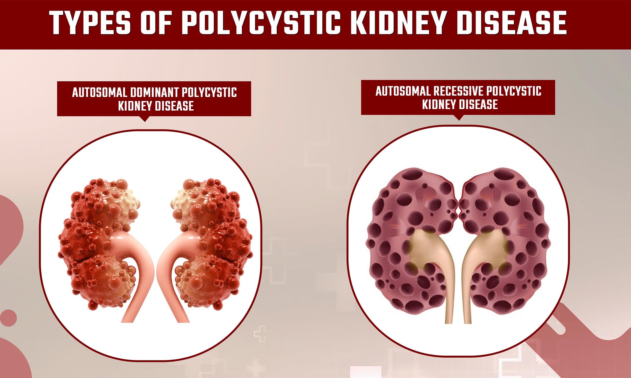 PolycysticKidneyDiseaseTreatment_sriaas.com